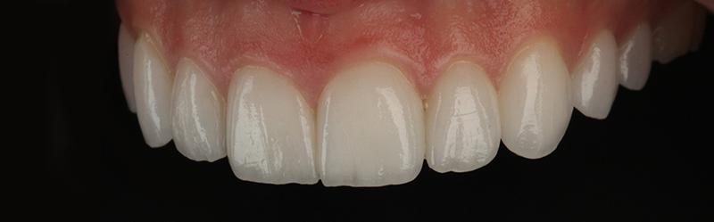 Natural Veneers | Best Dental