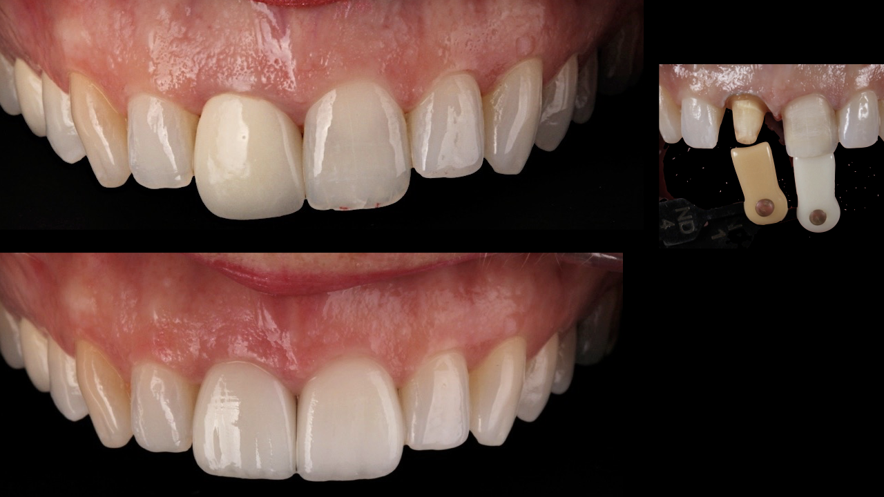 The difference between crowns and veneers  Smilestylist
